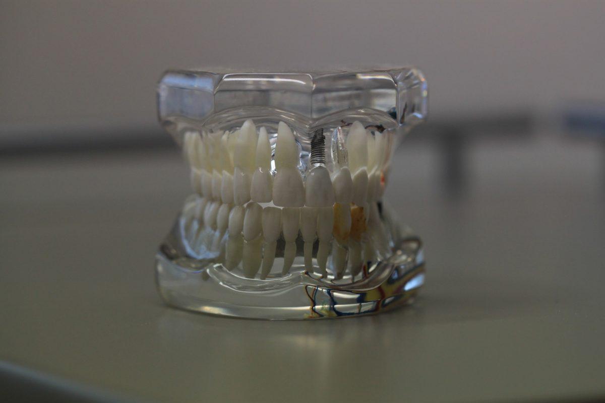 Zła metoda odżywiania się to większe braki w jamie ustnej oraz dodatkowo ich brak
